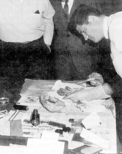 Guevara's severed hands being fingerprinted